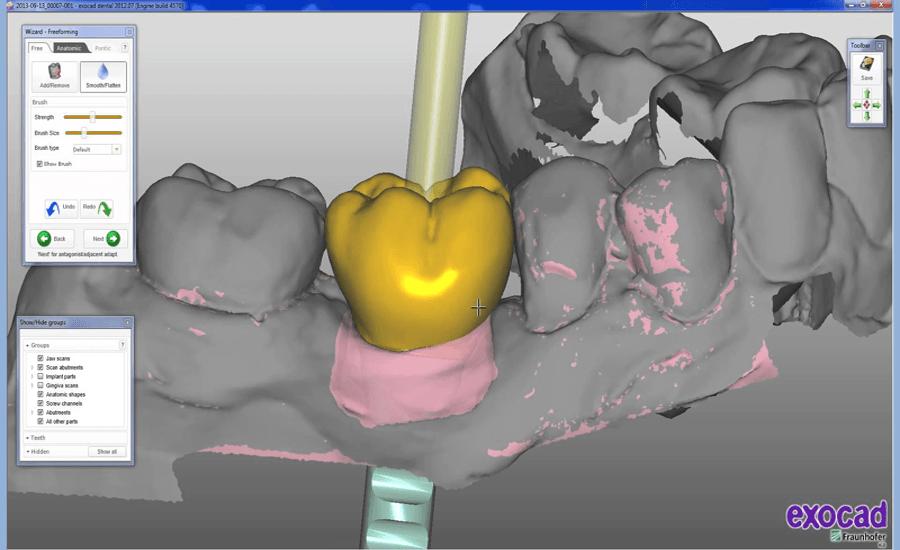 exocad for technicians - Dental CAD Website